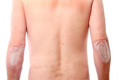Schuppenpflechte/Psoriasis am Ellenbogen