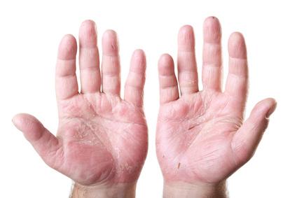 Neurodermitis Hände